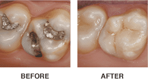cerec dental crown silver filling before and tooth colored crown after baton rouge louisiana